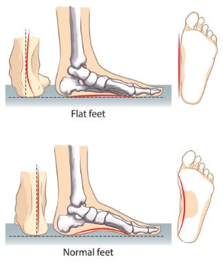 how-to-tell-if-you -are-flat-footed